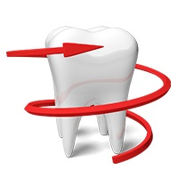 Cosmetic Dentistry South Africa Dr. Filipovski Extractions